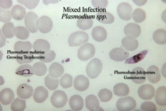 Figure 2: CDC slide of a Giemsa stained smear of red blood cells showing Plasmodium malariae and Plasmodium falciparum parasites.