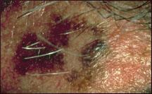 Picture shows asymmetry of a melanoma