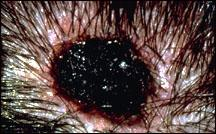 Picture of a melanoma