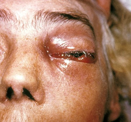 Picture of periorbital fungal infection known as zygomycosis, mucormycosis, or  phycomycosis