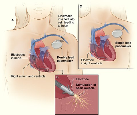 Picture of how a pacemaker works