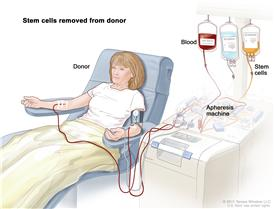 Stem cell transplant (Step 1). Blood is taken from a vein in the arm of the donor. The patient or another person may be the donor. The blood flows through a machine that removes the stem cells. Then the blood is returned to the donor through a vein in the other arm.