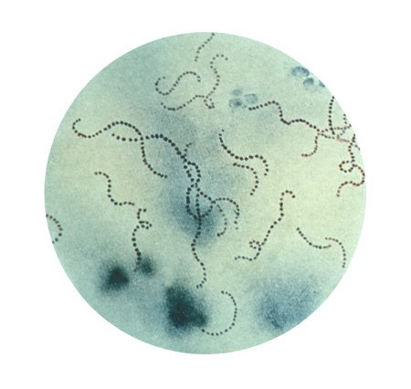 Photograph of Streptococcus pyogenes (GAS).