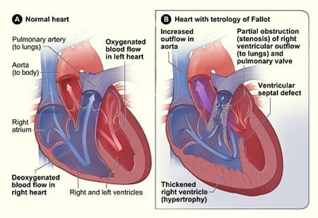 Picture of a cross-section of a normal heart and a heart with tetralogy of Fallot.