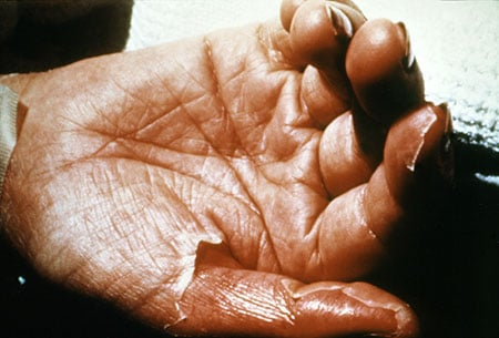 Picture of skin loss in toxic shock syndrome (TSS)
