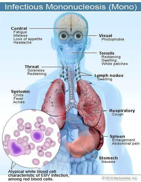 Picture of Infectious Mononucleosis Symptoms and Signs