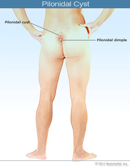 Picture of a pilonidal cyst