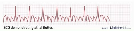 ECG Wave Patterns of the Sawtooth Pattern of Atrial Flutter