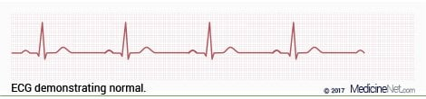 Normal ECG Wave Strip Pattern
