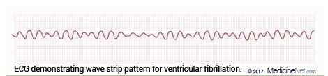 ECG Wave Pattern Strip for Ventricular Fibrillation