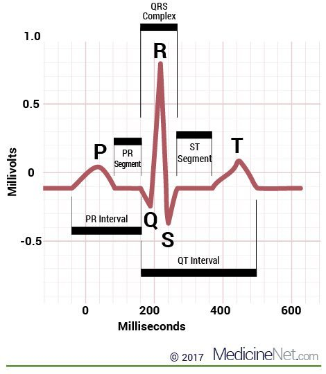 Enlargement of a normal ECG Strip showing PQRST Intervals in a normal heartbeat