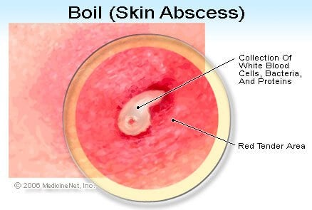 Picture of a Boil (Skin Abscess)