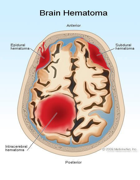 Picture of epidural, subdural, and intracerebral hematomas.