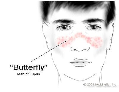 Picture of systemic lupus erythematosus (SLE or lupus) butterfly rash