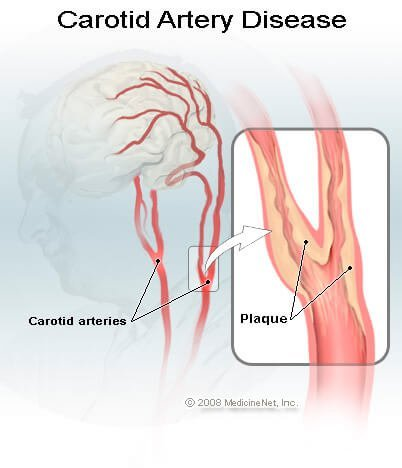 Picture of Carotid Artery Disease and Plaque Buildup