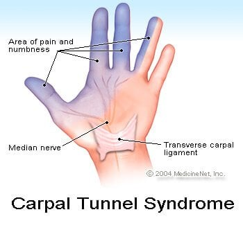 Picture of carpal tunnel syndrome