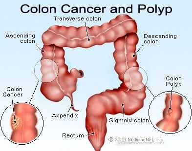 Picture of colon (colorectal) cancer.
