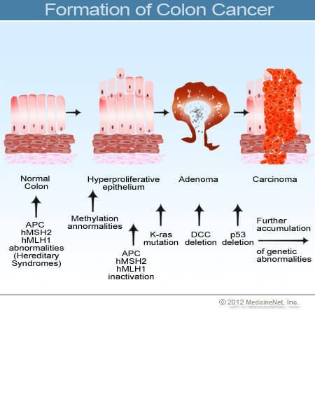 Picture of colon cancer formation.