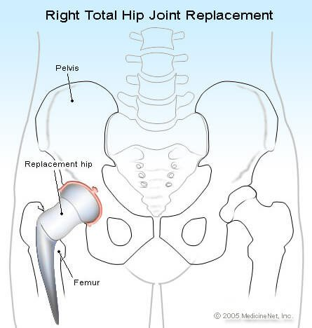 Picture of a total hip replacement