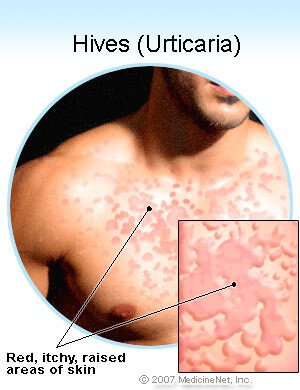 Pictures of hives