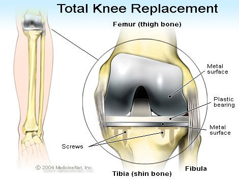 Picture of a total knee replacement