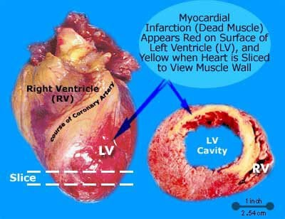 Picture of Myocardial Infarction Caused by Heart Attack