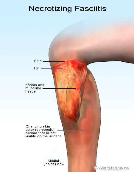 Picture of necrotizing fasciitis (flesh-eating disease)