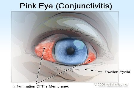 Picture of Pink Eye or Conjunctivitis