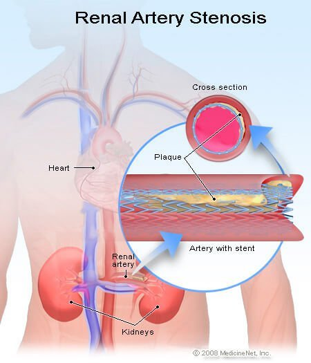 Picture of renal artery stenosis surgery