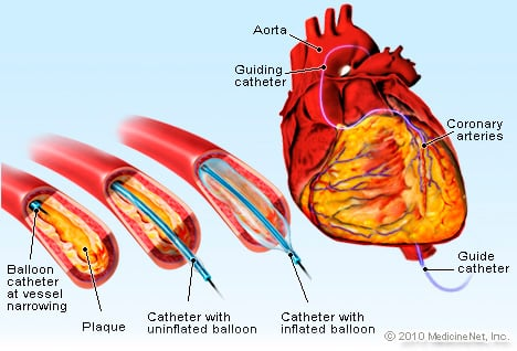 Balloon Angioplasty Illustration