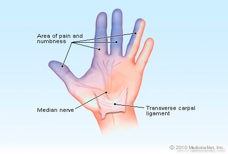 Carpal Tunnel Syndrome Picture Image on MedicineNet.com