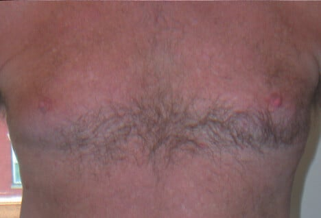 Veins breasts purple on What Causes