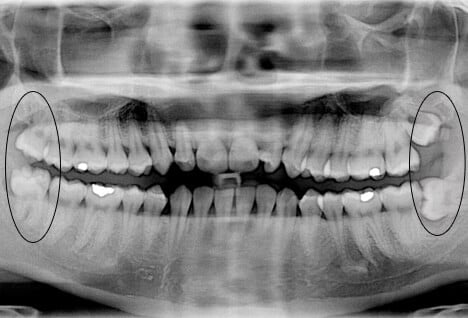 Wisdom Teeth Removal Pain Recovery Time Impacted Teeth