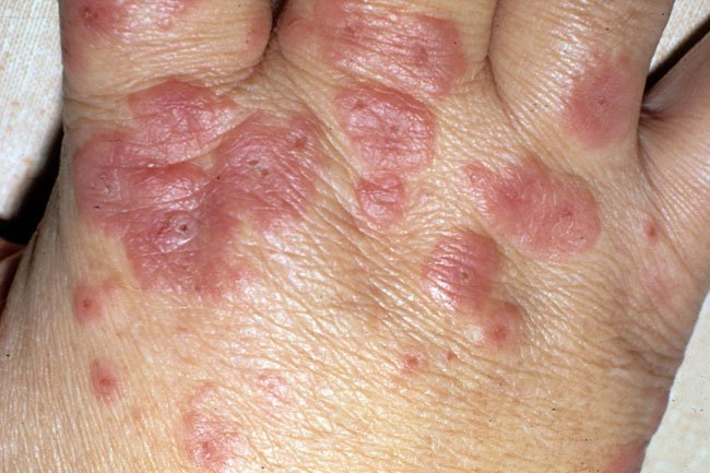 Picture of Erythema Multiforme 2