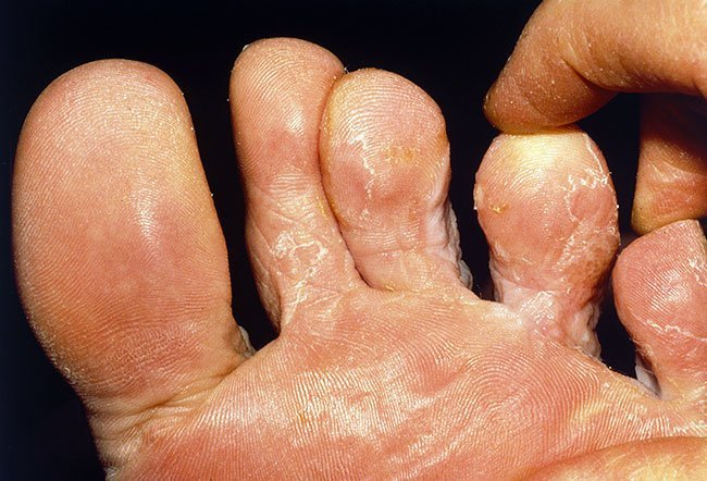 Picture of Ringworm Tinea Pedis