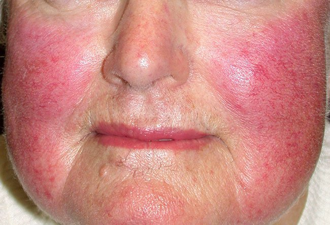 Picture of Rosacea (2 of 2)