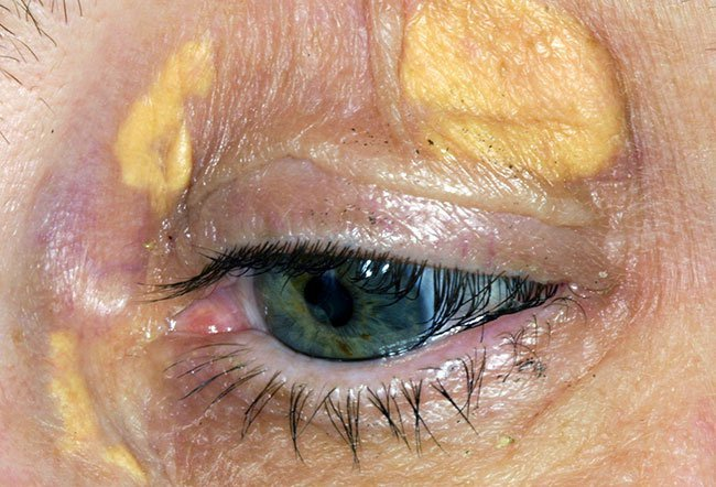 Picture of Xanthomatosis
