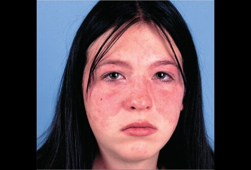 acute systemic lupus picture image on medicinenet, Skeleton
