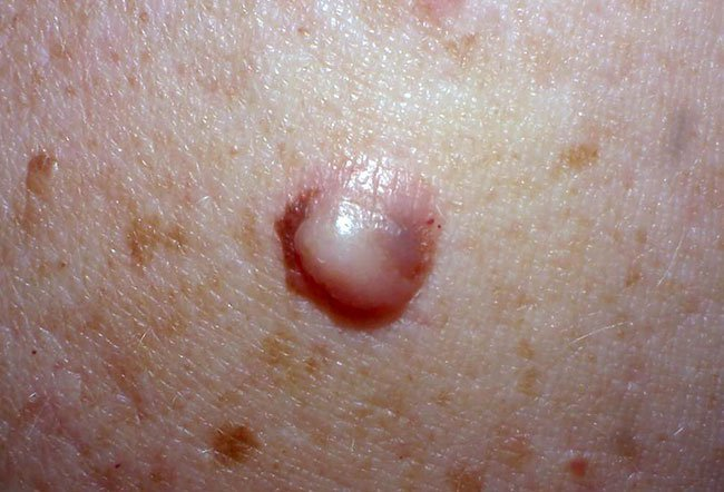 Picture of Desmoplastic Melanoma