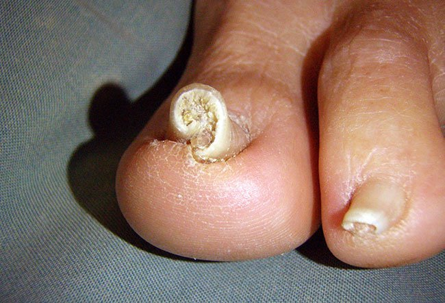 Can Jaundice Cause The Nail Beds To Turn Yellow