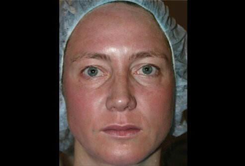 Picture of Erythema Following Fraxel Laser Treatment
