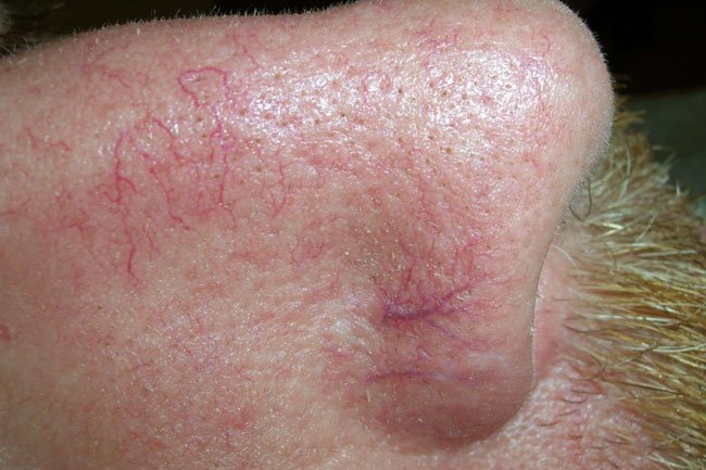 Picture of Facial Telangiectasias on MedicineNet
