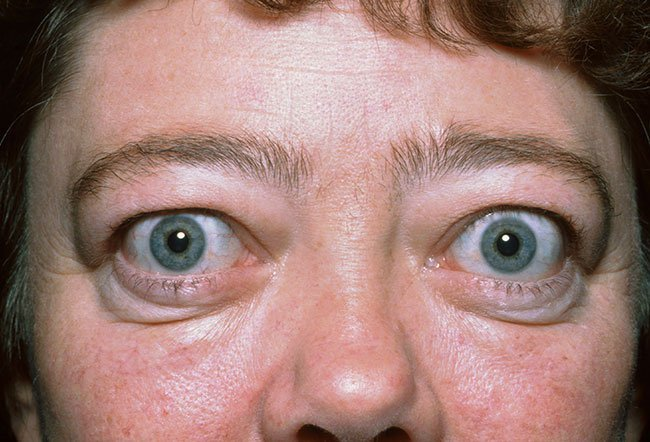 Picture of Graves Disease