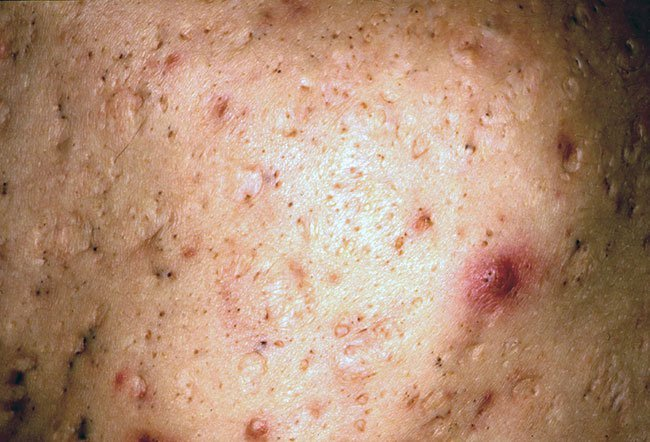 Picture Of Ice Pick Scars On Medicinenet