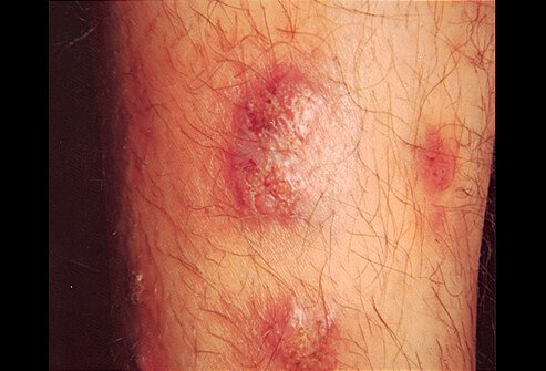 Picture of Iododerma and Bromoderma Granulomatous Reaction