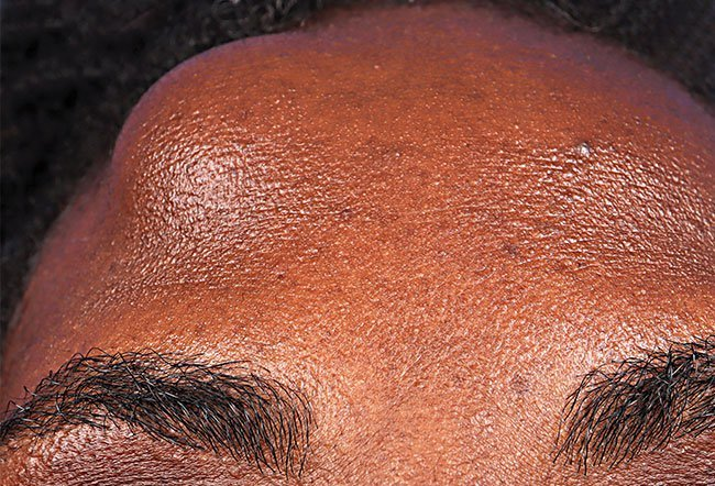 Basal Cell Carcinoma Ear Picture Image On Medicinenet Com