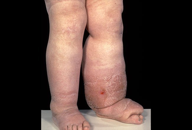 Picture of Lymphedema