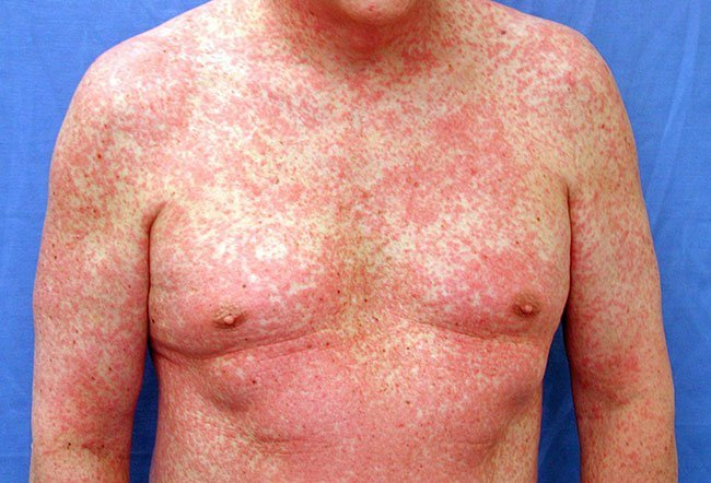 Spots adults Facial in