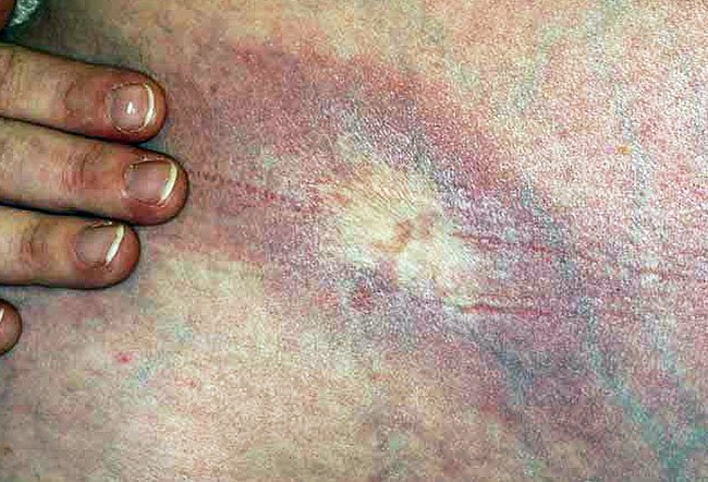 Picture of Morphea (Late Stage).