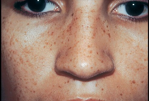 Picture of Multiple Lentigines Syndrome (Face)